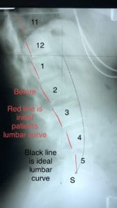 Chiropractic Biophysics Lumbar Analysis Before Optimus Spine & Posture