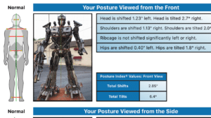 Optimus Spine & Posture Assessment