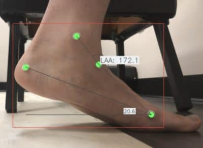Custom Foot Orthotic Analysis