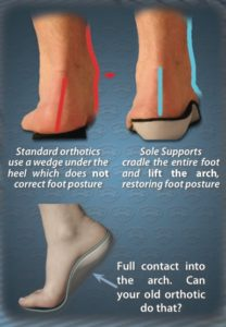 Custom Foot Orthotic Example